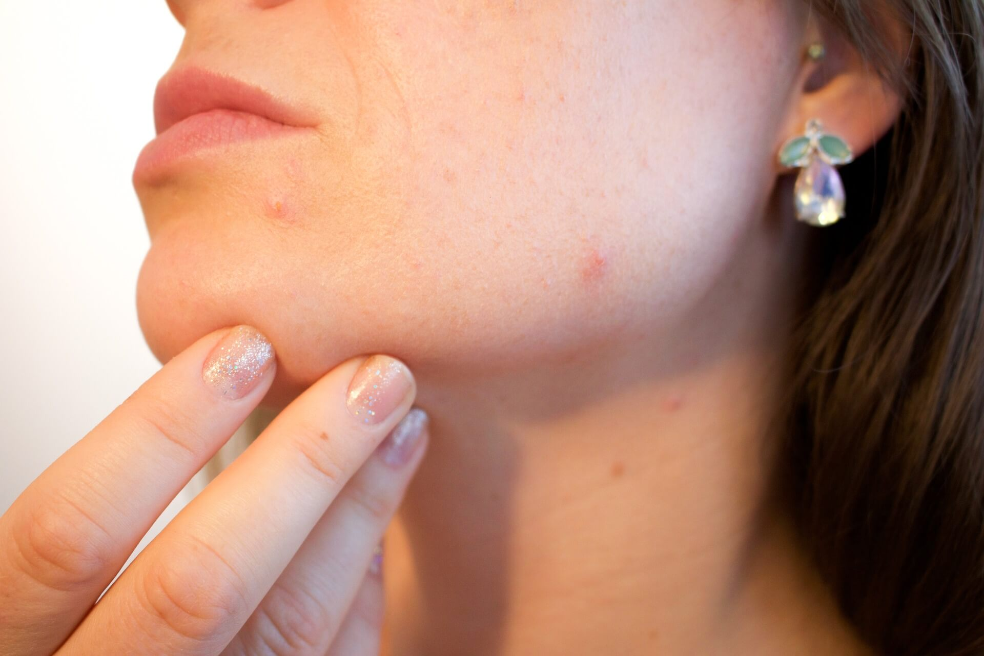 Home care for acne problem
